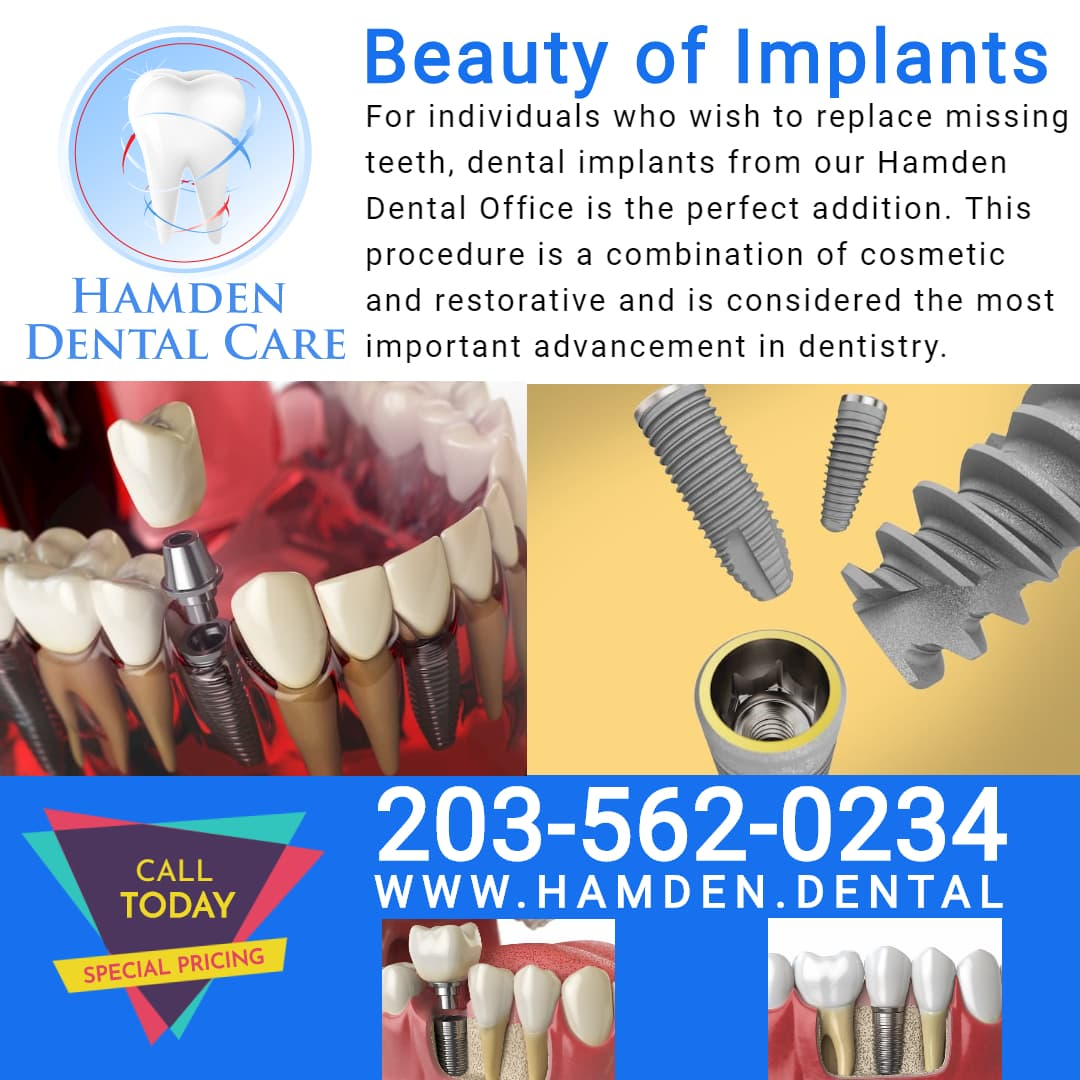 Hamden Dental Care Hamden CT Implant Technology Specialists