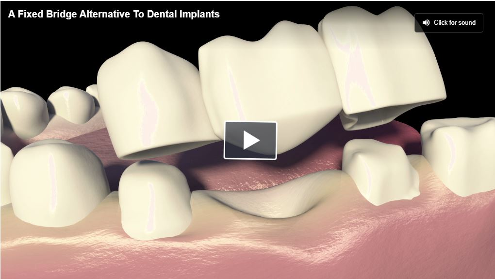 Fixed Bridges: Unlike total or partial dentures, fixed bridges are, as the name suggests, fixed in place. Best known for being the most common alternative to dental implants. Fixed bridges are sometimes considered one of the best alternatives for a single tooth replacement.